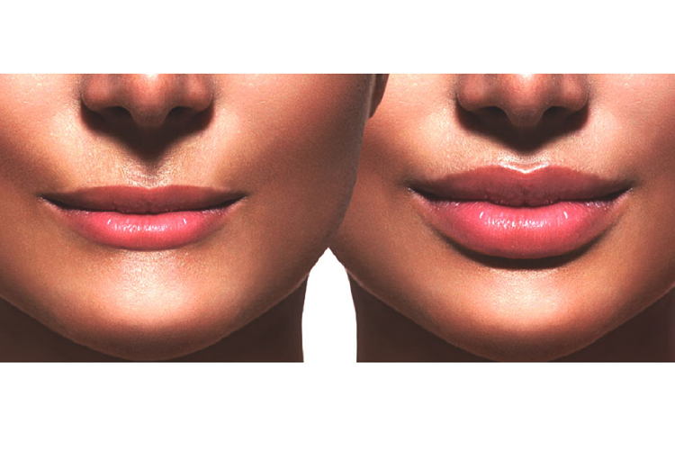 läppglans som gör läpparna större